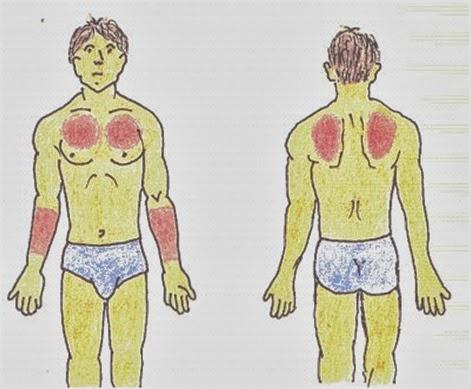 sitios-de-eleccion-intradermica