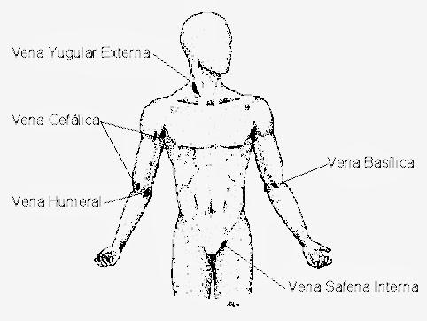 sitios-de-inyeccion-intravenosa-1