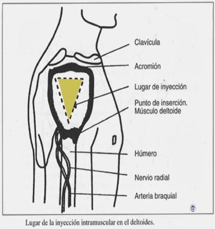 sitios-eleccion-intramuscular-1