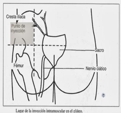 sitios-eleccion-intramuscular-2