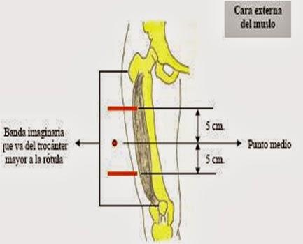 sitios-eleccion-intramuscular-3