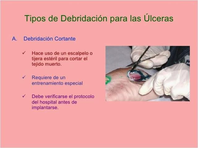 tratamiento-de-la-ulcera-por-presion