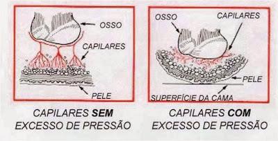 ulcera-por-presion
