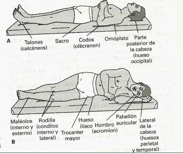 zonas-de-presion-corporal-1-p