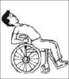 cambios-postural-silla-de-rueda-4