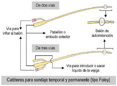 sondavesical1