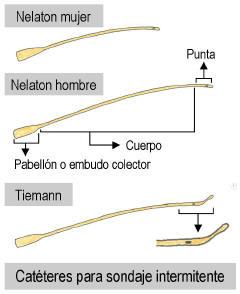 sondavesical2